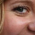 polecamy ciekawe wpisy o zabiegach na twarz